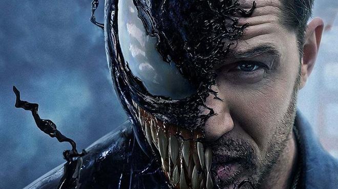 Venom : Tom Hardy a dû se faire opérer après le tournage